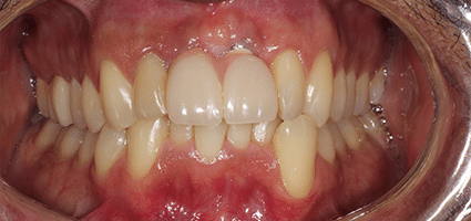 After Implant Dentures