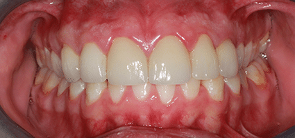 Upper Crowns After