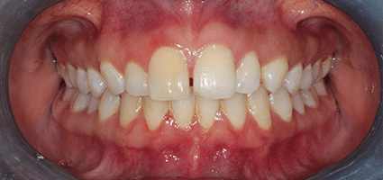 Teeth before Invisalign treatment at River Edge Dental