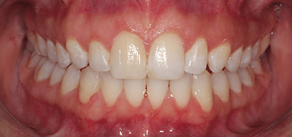 Teeth after Invisalign treatment at River Edge Dental