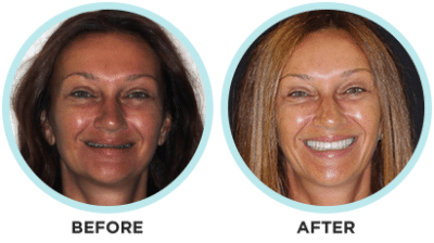 R.E.newSmile Dentistry™ Before and After