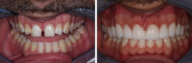 Porcelain Restorations