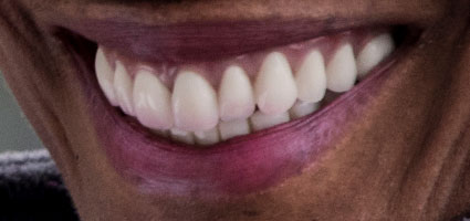 denture patient after smile