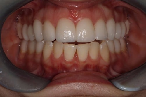 Full Mouth Reconstruction, TMJ, Corrected Bite